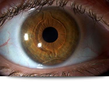 precio operacion miopia
