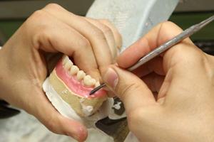 Protésicos dentales Madrid